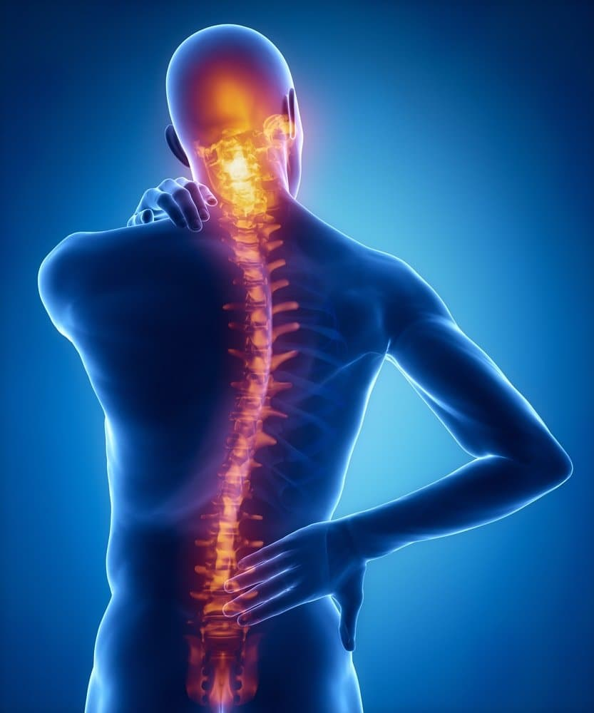 SCI Facts + Figures | SpinalCure Australia